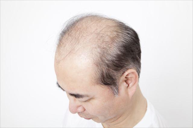 状態によってaga治療は異なる!!投薬で治療それとも自毛植毛?