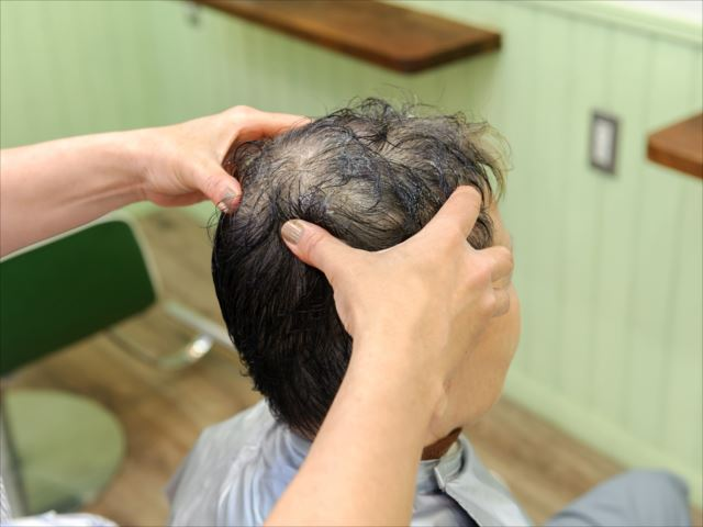自分の薄毛のタイプに合った施術を受けられるサロンを見つけるには